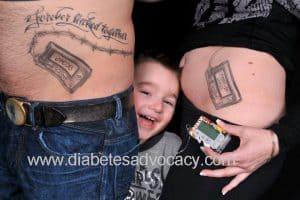 insulin pump tattoo
